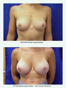Before & After Breast Augmentation 1- Sub-Fascial Placement, Clearwater, Fl.