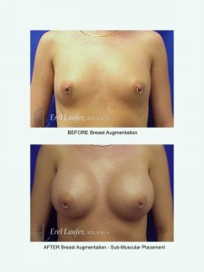 Before & After Breast Augmentation 1- Sub-Fascial Placement, Clearwater, Fl
