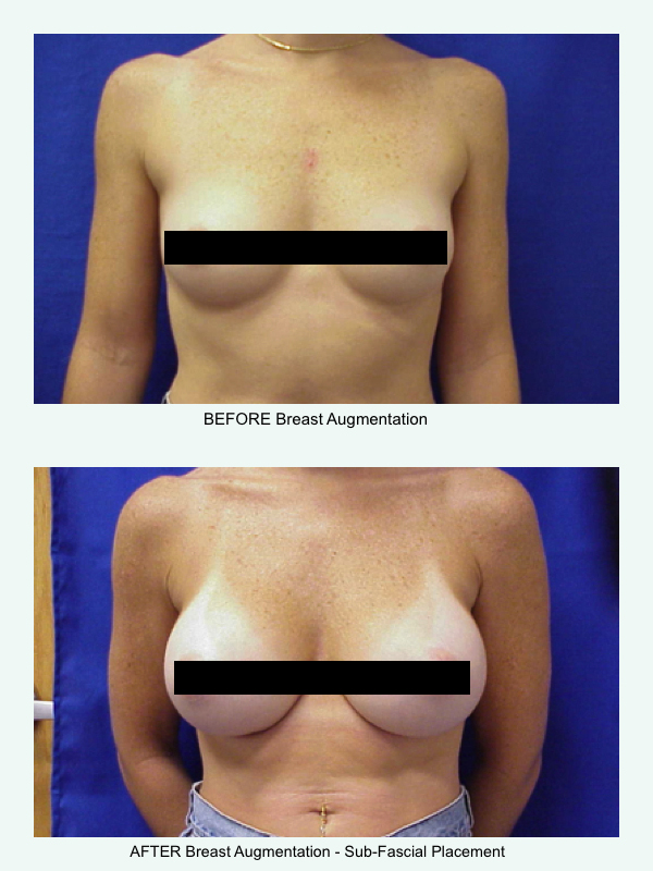 Breast Augmentation - Laufer Institute of Plastic Surgery
