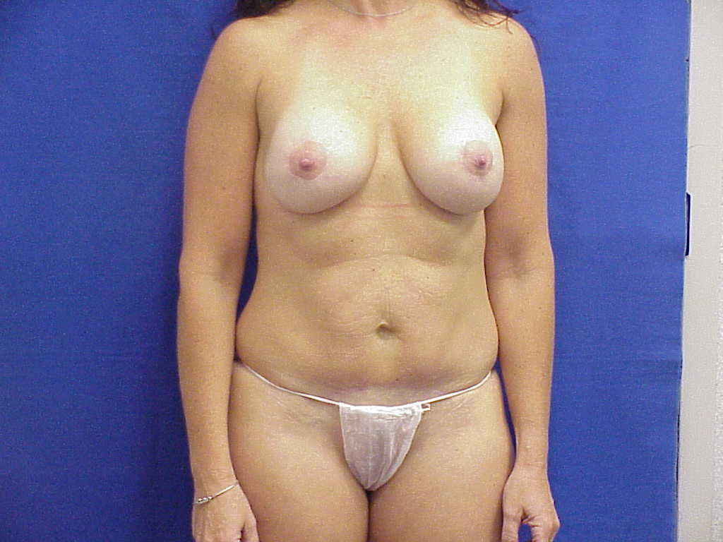 tummy tuck and periareolar mastopexy augmenting the breasts with own tissue from abdomen and small implant