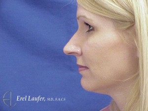 LB2 nose--watermarked