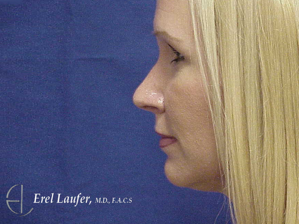 Rhinoplasty after photo