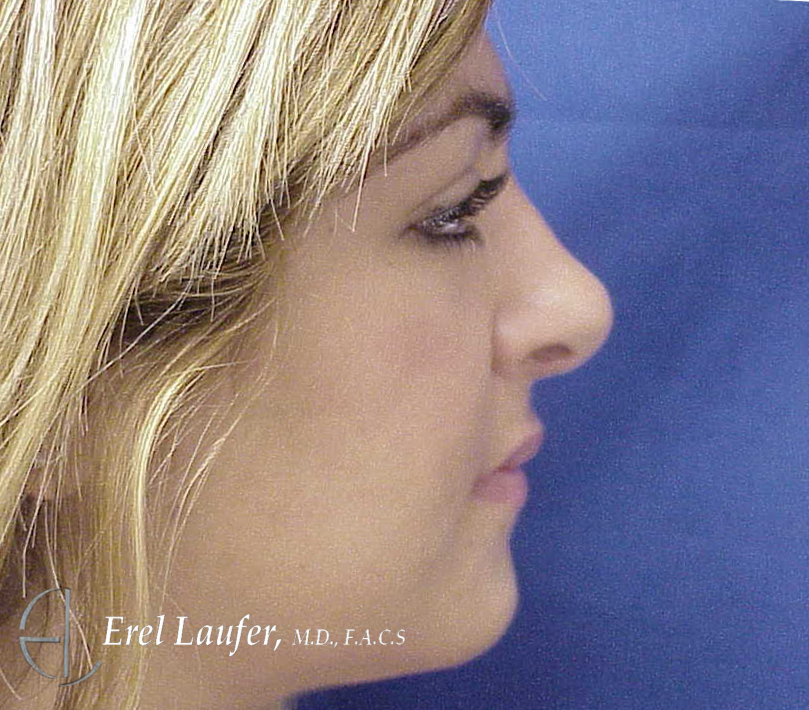 Nose Surgery - After