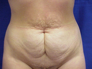 Tummy Tuck - Before