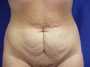 Tummy Tuck - Before
