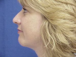 Correction of retrusive chin with alloplastic implant through incision in the mouth (intra oral).