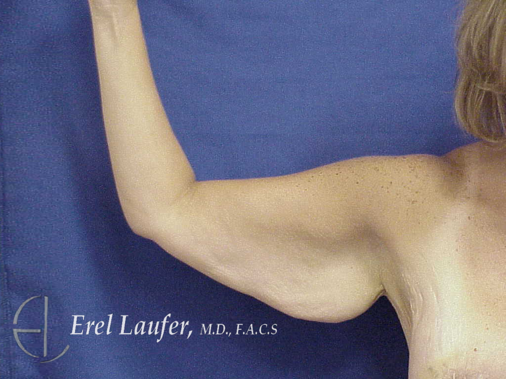 Brachioplasty surgery ,before photo
