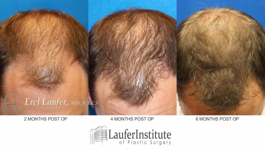 hair-transplant3-months