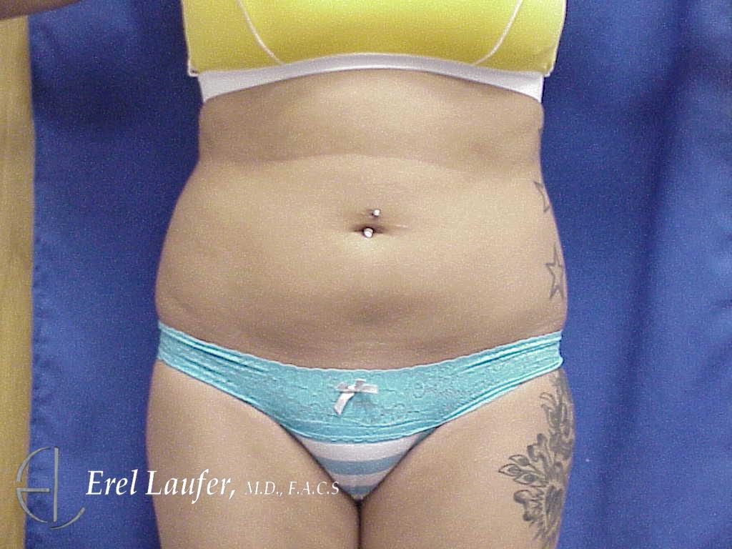 Liposuction Photos Laufer Institute Of Plastic Surgery