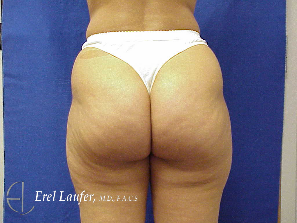 Liposuction Clearwater Fl Laufer Institute Of Plastic Surgery