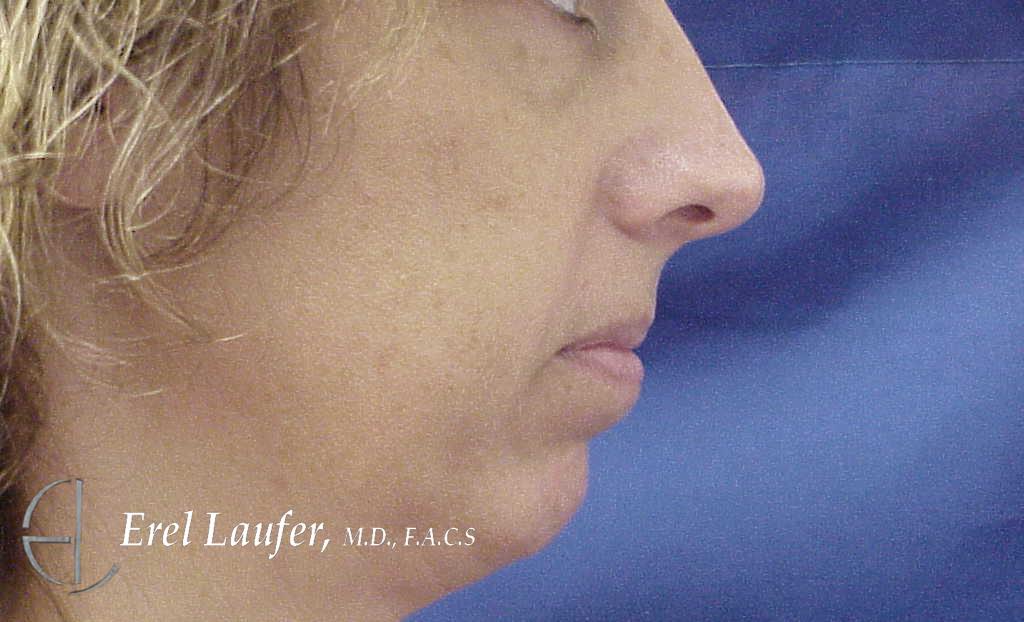 Microgenia (small chin), before picture.