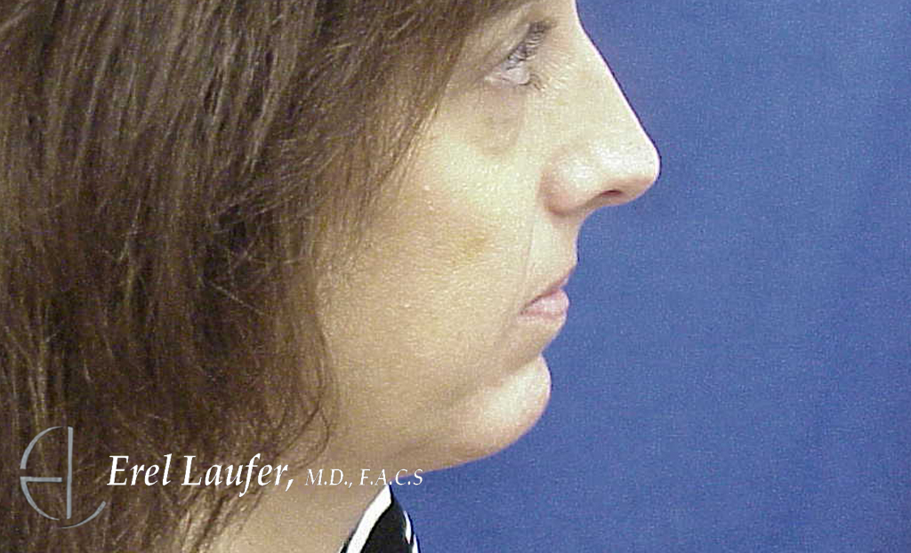 Augmentation genioplasty with silicone implant . After photo.