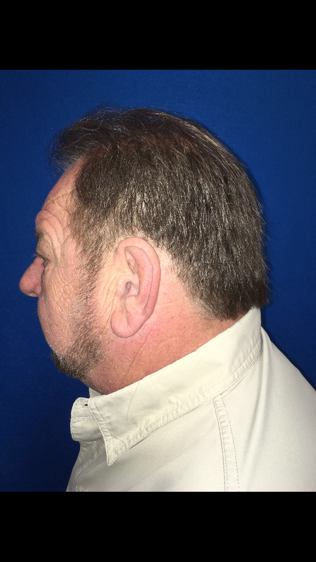 hair restoration after picture side view patient 1 clearwater