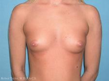 Breast Augmentation before photo