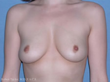 Front View: Breast Augmentation with silicone implants