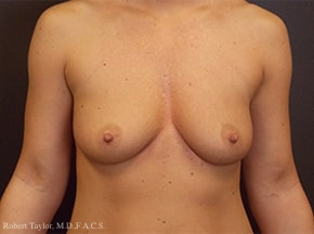 Front View: Breast Augmentation with silicone implants before photo