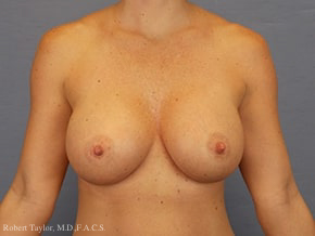 Front View: Breast Augmentation with silicone implants after photoFront View: Breast Augmentation with silicone implants after photo