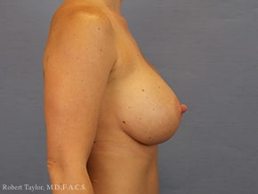 Side View: Breast Augmentation with silicone implants after photo