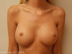 Front View: Breast Augmentation with silicone implants after photo
