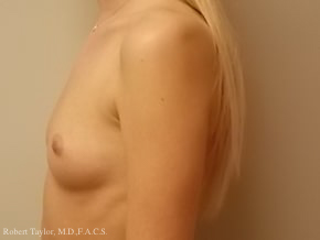 Side View: Breast Augmentation with silicone implants before photo